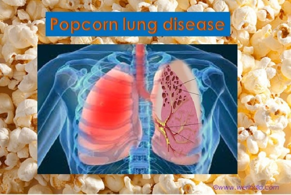 4b380ad202a What does the popcorn lung disease feel like  - Quora