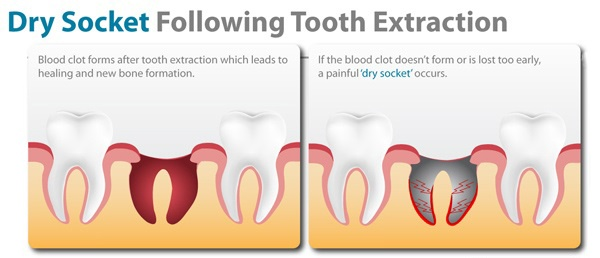 How Long Are You Susceptible To Dry Socket After Wisdom Teeth Removal Quora