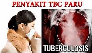 Obat Untuk Penyakit TBC De Nature