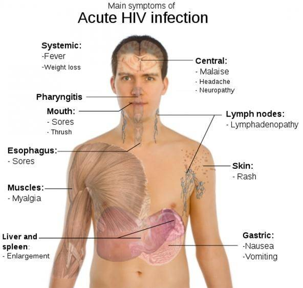 analysis of the aids disease origin symptoms and cure Journal of antivirals & antiretrovirals, journal of infectious diseases & therapy, virology & mycology, journal of the international association of physicians in aids care, african journal of aids research, aids and public policy journal, aids research and treatment and aids clinical care, hiv/aids - research and palliative care, hiv medicine.