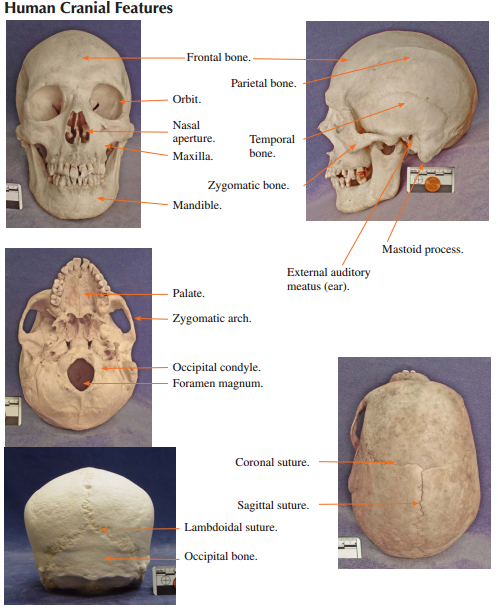 Does A Sheep Skull Have The Same Bones As Human Skull Quora