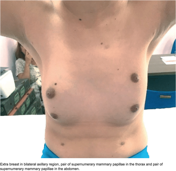 Why do people have extra nipples? - Quora