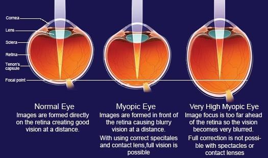 myopia 6 dioptria olyan)