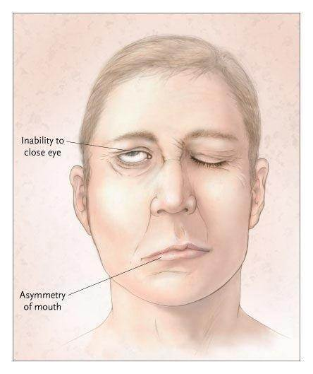 can bell's palsy reoccur