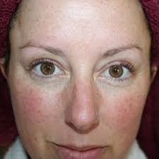 Does Helicobacter pylori cause Rosacea? - Quora