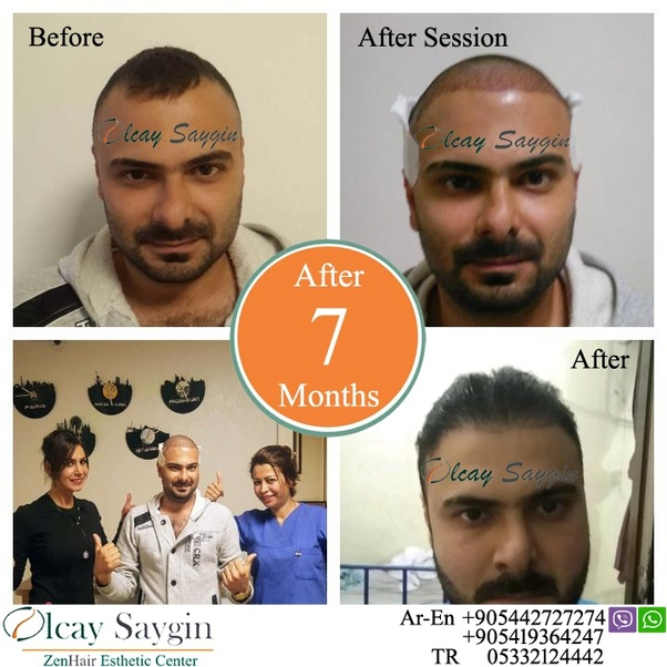 Price Policy Developed Against Hair Loss It Plays An Active Role In The Diagnosis And Treatment Of Patients With Not Only Planting But Also