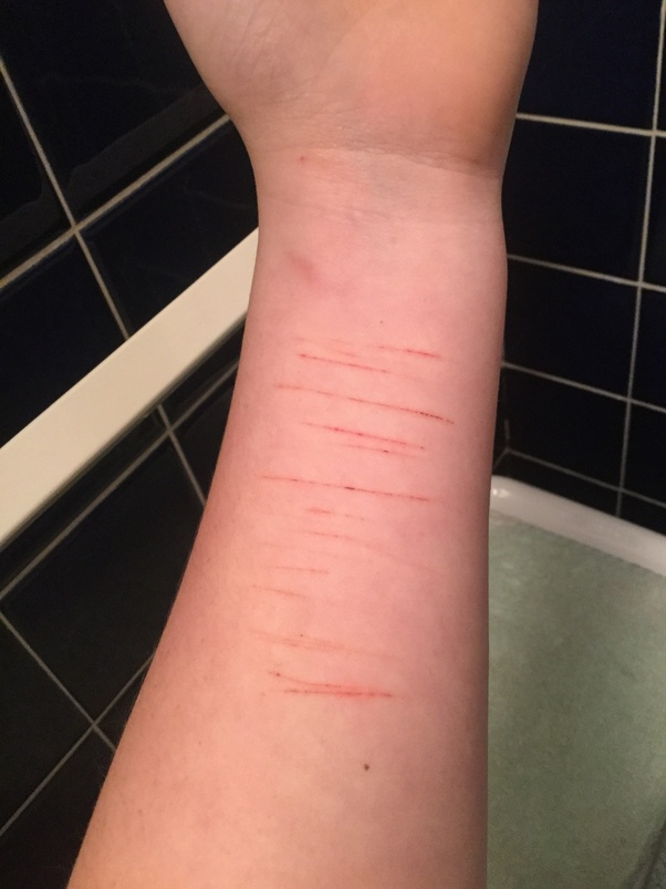 How to find the courage to cut myself - Quora
