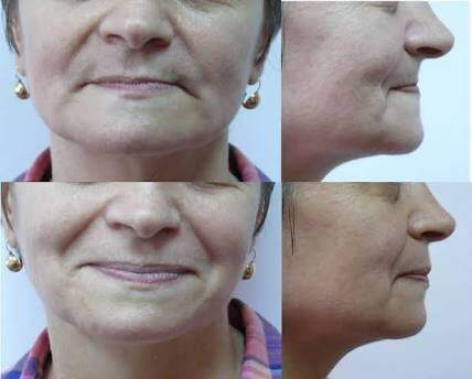 Can teeth problems lead to shrunken cheeks? - Quora