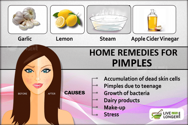 Natural Remedies To Clear Black Blemishes
