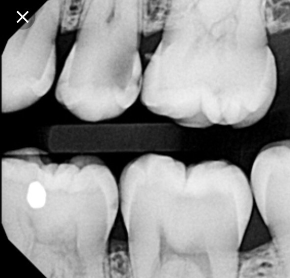 Image result for interproximal cavities