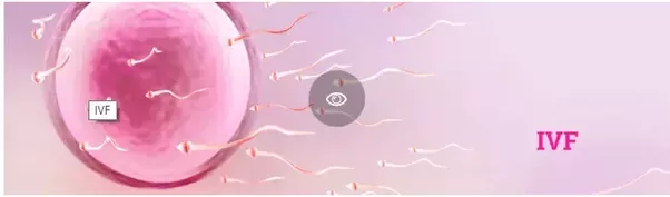 What is the difference between IUI and IVF?