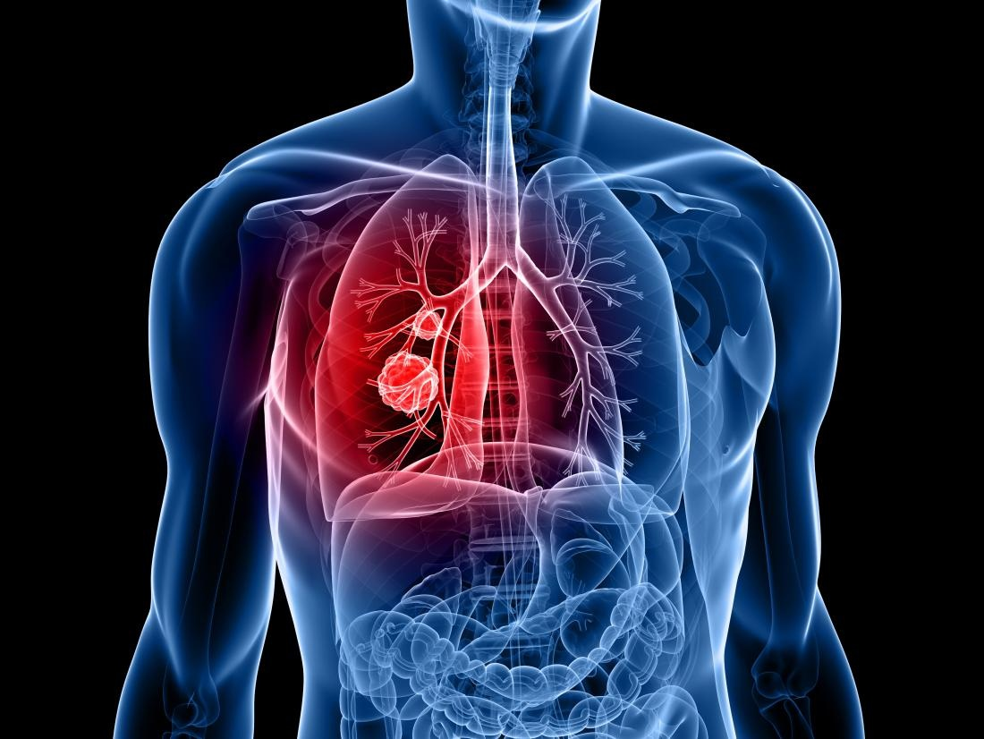 Can exposure to asbestos cause Buerger's disease? - Quora