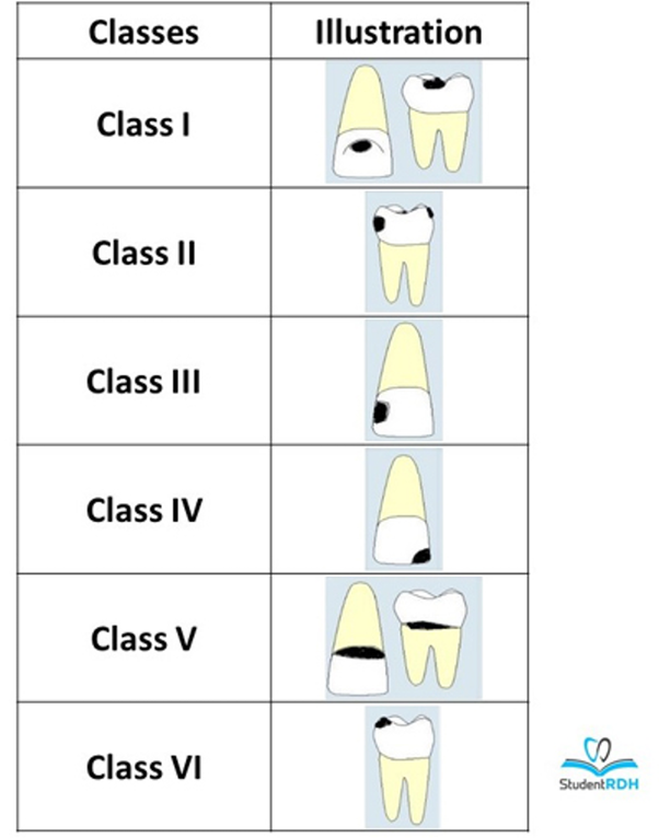 What are the types of tooth cavities? - Quora