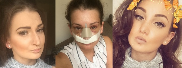 How To Get Rid Of Face Swelling After Rhinoplasty Quora