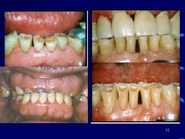 Is It Safe To Use Baking Soda And A Lemon Mixture For Whitening The Teeth Are There Any Side Effects Quora