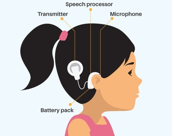 cochlear implant cost with insurance