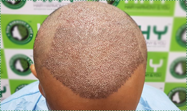 Has anyone had a successful hair transplant in India? If ...