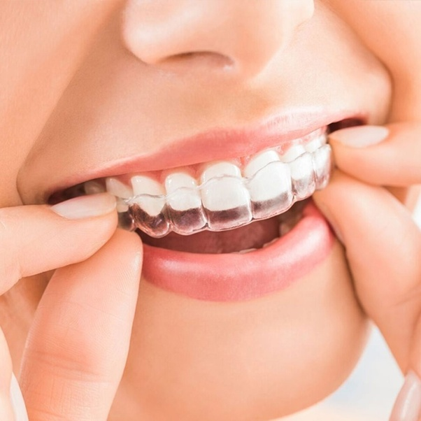 What S The Best Method To Clean Invisalign Quora