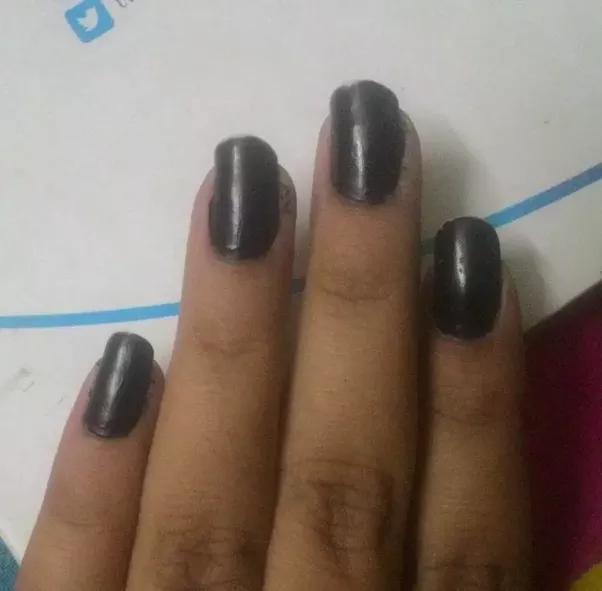 Why do I bite the skin next and around my nails? - Quora