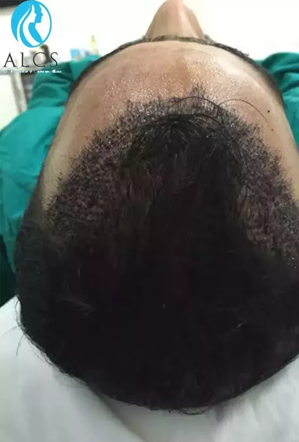 Is Hair Transplantation A Permanent Solution Quora