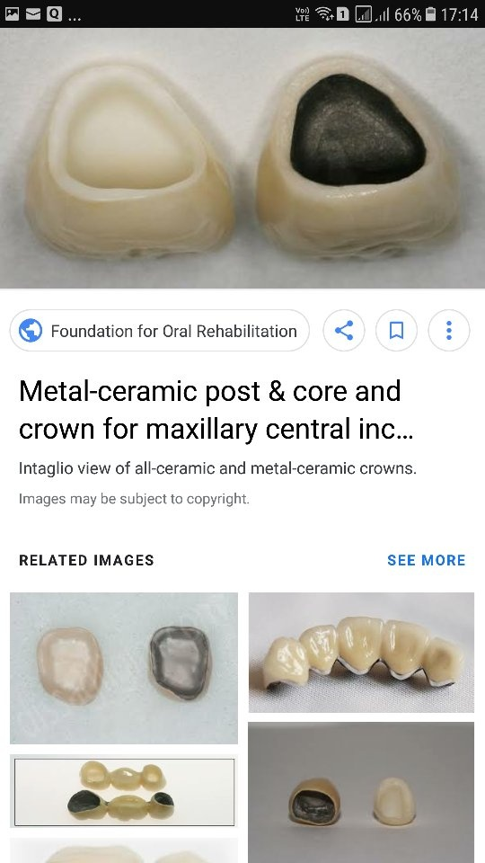 Which crown is better for front teeth? - Quora