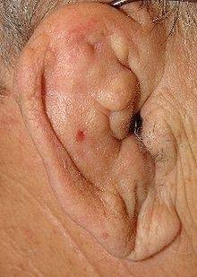 cauliflower ear also known as boxers ear or wrestlers ear is an acquired deformity of the outer ear in which the ear thickens wrinkles and folds on