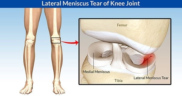 Can A Meniscal Tear Cause This Type Of Atrophywasting Of The Entire