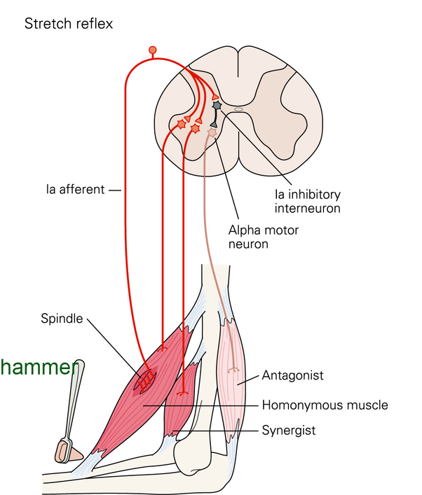 What is the purpose of a reflex hammer? - Quora
