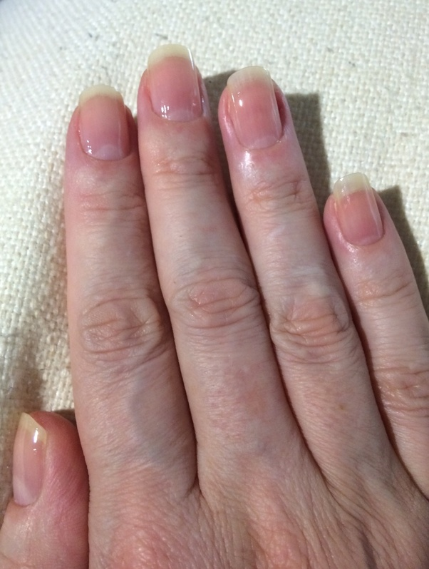 If I cut a nail too short, will it grow back? - Quora