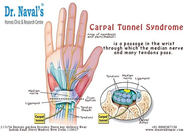 What Is Carpal Tunnel Syndrome Quora