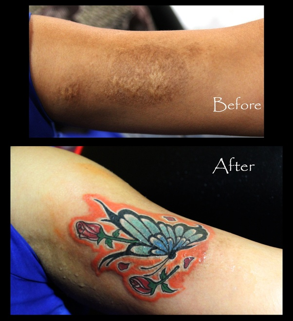 What are the best tattoo studio for coverup in Bangalore ...
