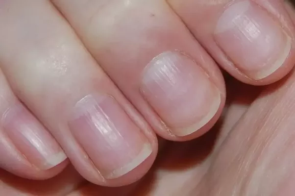 Of Course If You Have Smooth Nails All Your Life And They Start Developing Ridges Then Other Things Can Be Happening The Most Common Is Aging