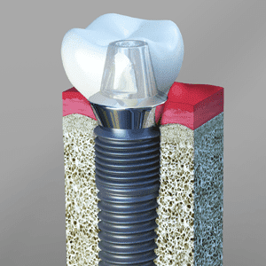 What is the name of the best quality dental implant? - Quora