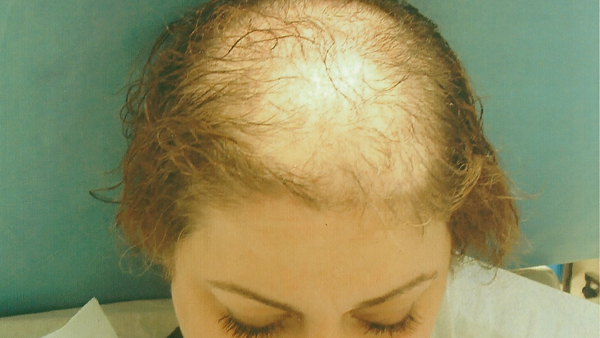 Is there hairloss in women? - Quora