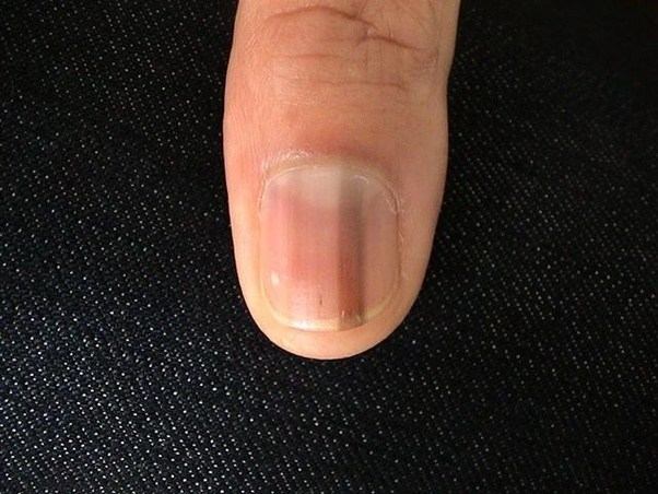 It Could Be Melanonychia Which Can Indicate Nothing Or Melanoma Cancer Under The Nail If You Have This See A Doctor To Safe