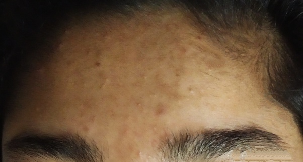 Why Does Acne Appear On My Forehead Quora