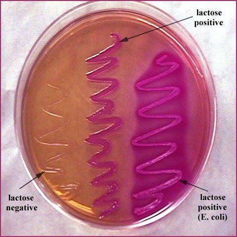 Blue colonies on EMB (eosin-methylene blue) agar plate ...