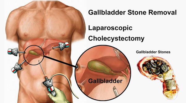 What is cost for the gallblader stone removal surgery in