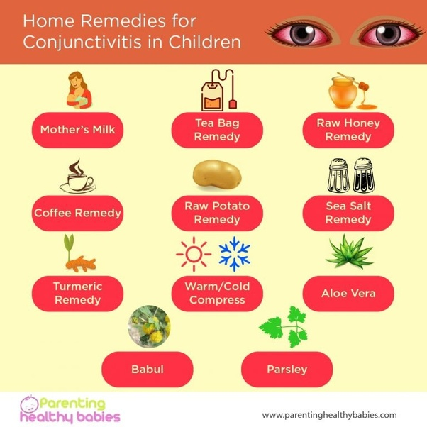 What Are Some Homemade Remedies For Conjunctivitis Quora