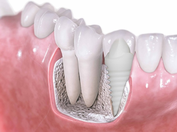 How much does a zirconium tooth implant cost? - Quora