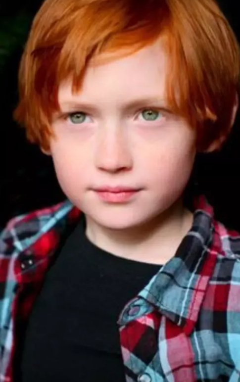 Why Is It More Common For Redheads To Have Green Eyes Than Blue Ones Quora