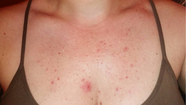 Will fungal acne go away on its own? - Quora