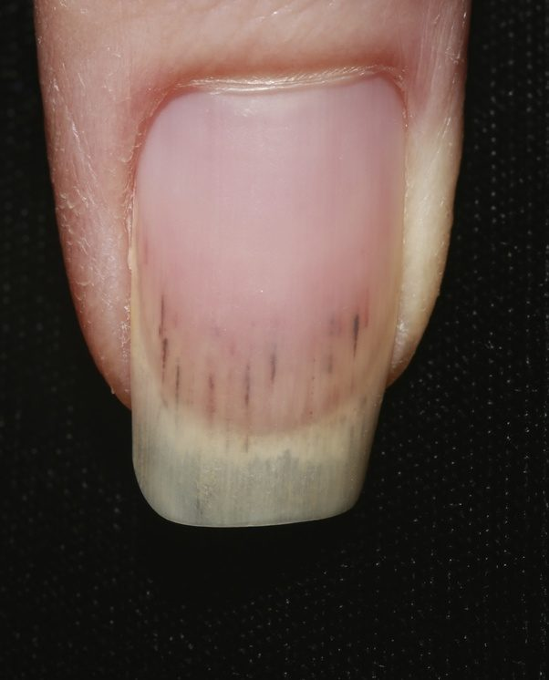 What does mean when you have black lines in your fingernails? - Quora