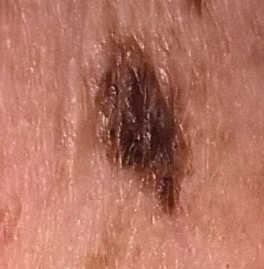 What would happen if you cut off a mole quora edit the photo is an actual melanoma which was later removed from my neck in actual perspective its about 14 in length it appeared suddenly and grew solutioingenieria Image collections