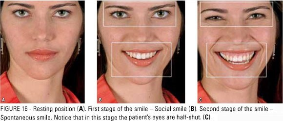 Types of smiles psychology