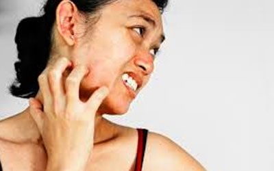 What causes the skin to itch, no rashes, bug bites, or dry