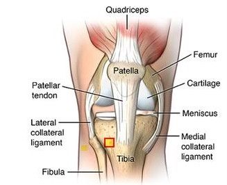 Why is the the patella a common example of a sesamoid bone