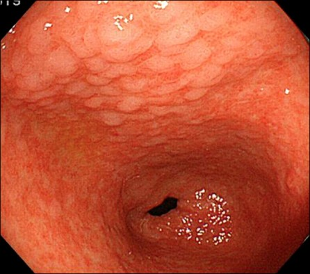 Can Helicobacter Pylori Be Missed With An Endoscopy Quora