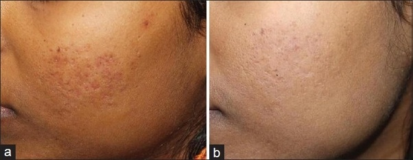 How to get rid of indentation scars on the face - Quora