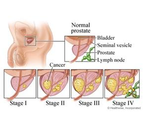 Best prostate cancer radiation treatment options